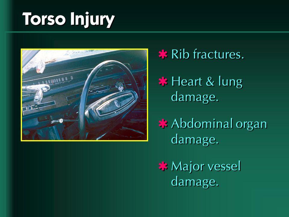 Torso Injury Rib fractures. Heart & lung damage. Abdominal organ damage. Major vessel damage. Rib fractures. Heart & lung damage. Abdominal organ dama