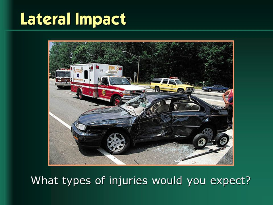 Lateral Impact What types of injuries would you expect?