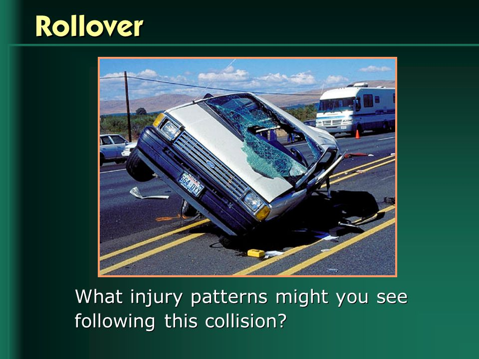 Rollover What injury patterns might you see following this collision?