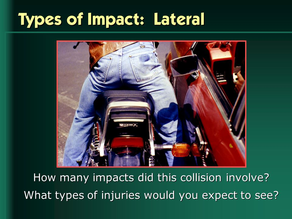 Types of Impact: Lateral How many impacts did this collision involve? What types of injuries would you expect to see?