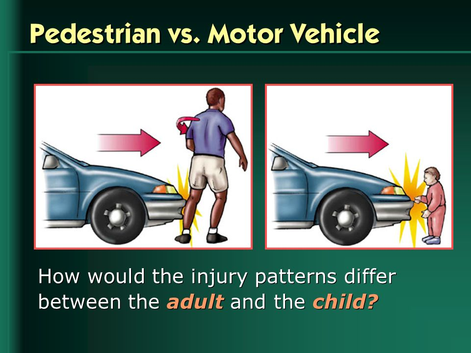 Pedestrian vs. Motor Vehicle How would the injury patterns differ between the adult and the child?