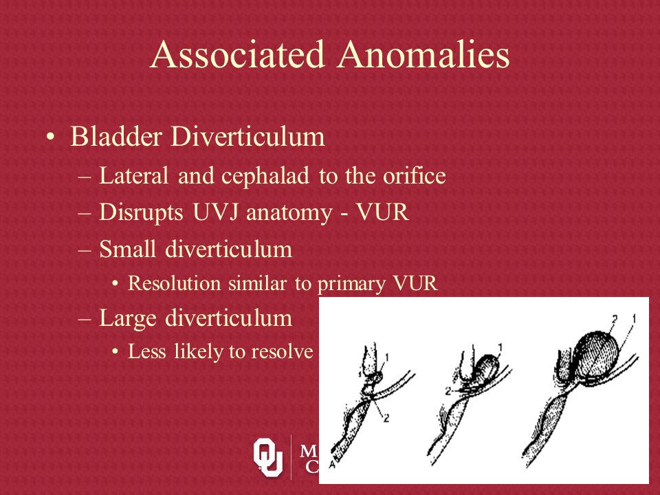 Associated Anomalies Bladder Diverticulum –Lateral and cephalad to the orifice –Disrupts UVJ anatomy - VUR –Small diverticulum Resolution similar to p