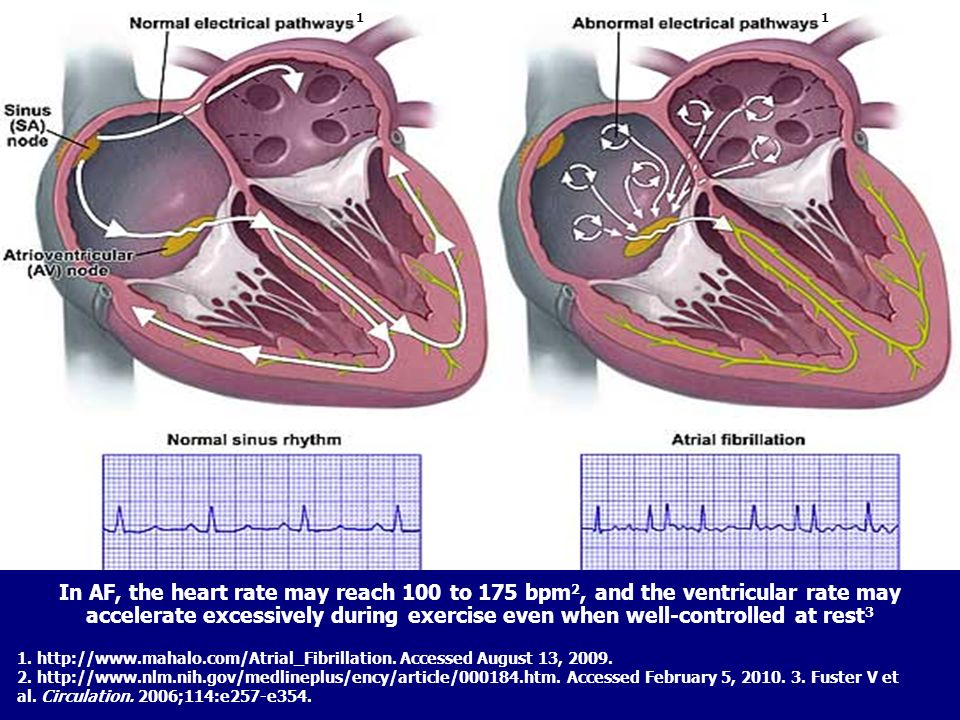 TAMRC # - DRO-042610004 1. http://www.mahalo.com/Atrial_Fibrillation. Accessed August 13, 2009. 2. http://www.nlm.nih.gov/medlineplus/ency/article/000