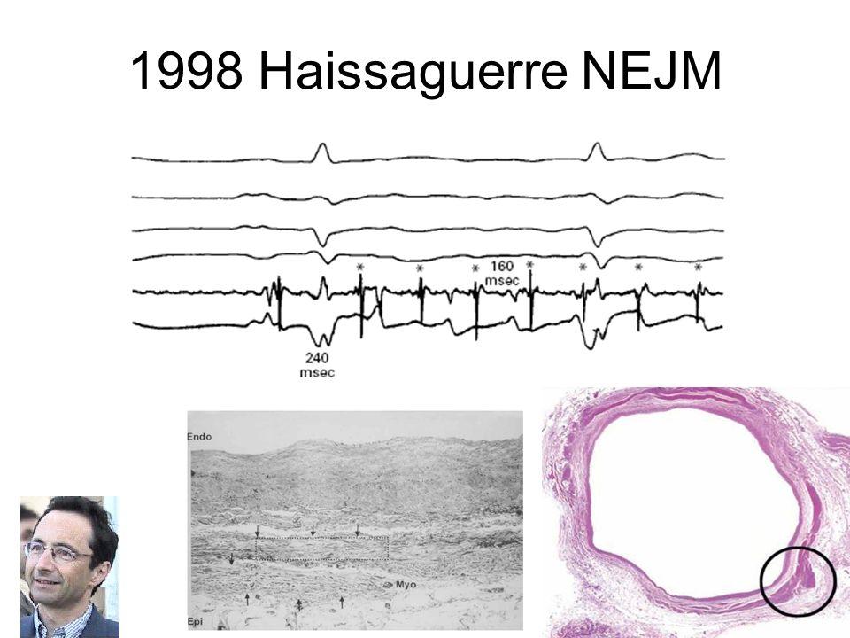 1998 Haissaguerre NEJM