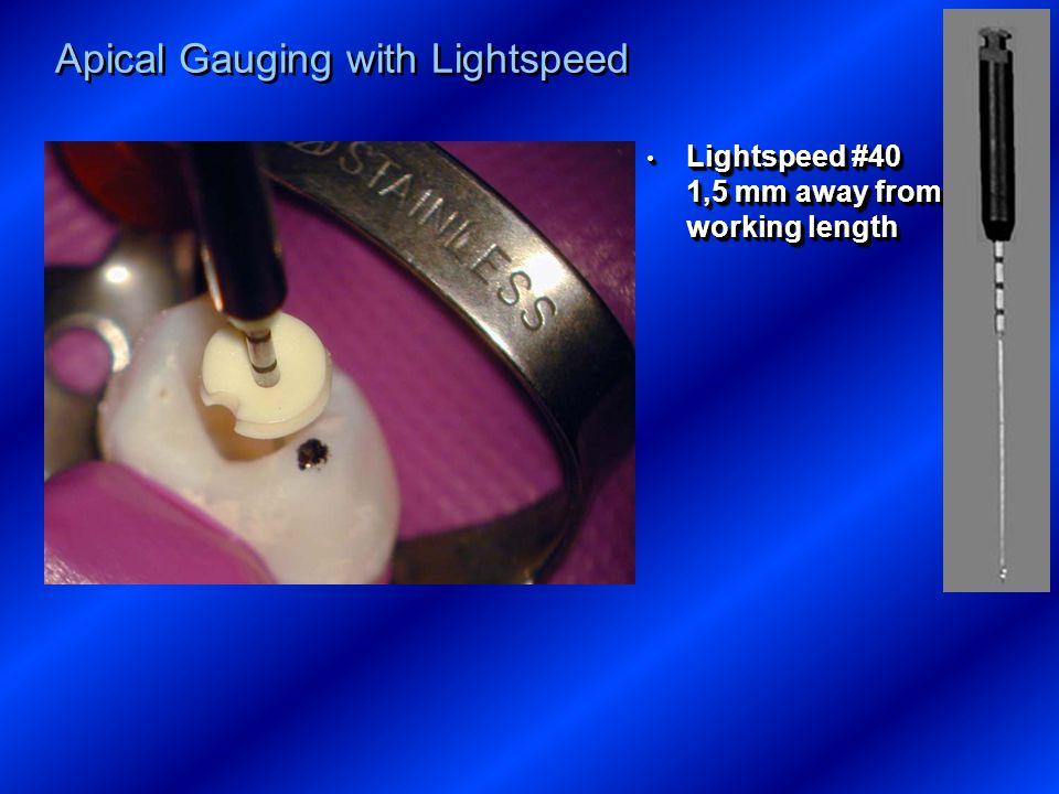 Apical Gauging with Lightspeed Lightspeed #40 1,5 mm away from working length Lightspeed #40 1,5 mm away from working length