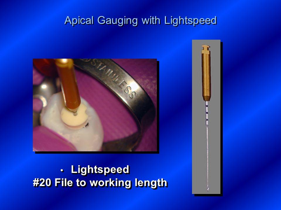 Apical Gauging with Lightspeed Lightspeed #20 File to working length Lightspeed #20 File to working length