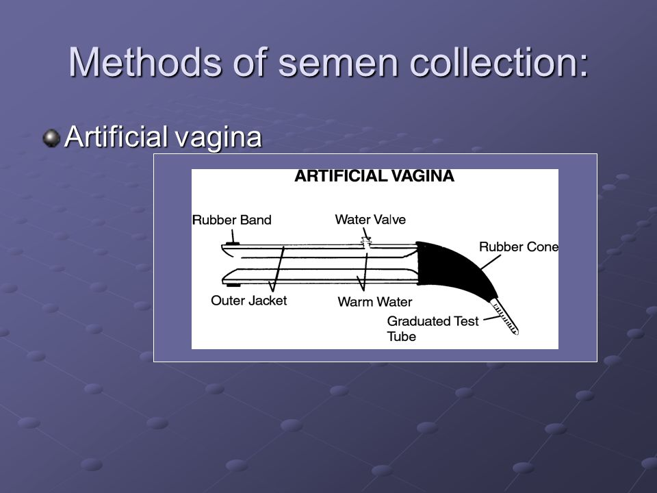 Methods of semen collection: Artificial vagina