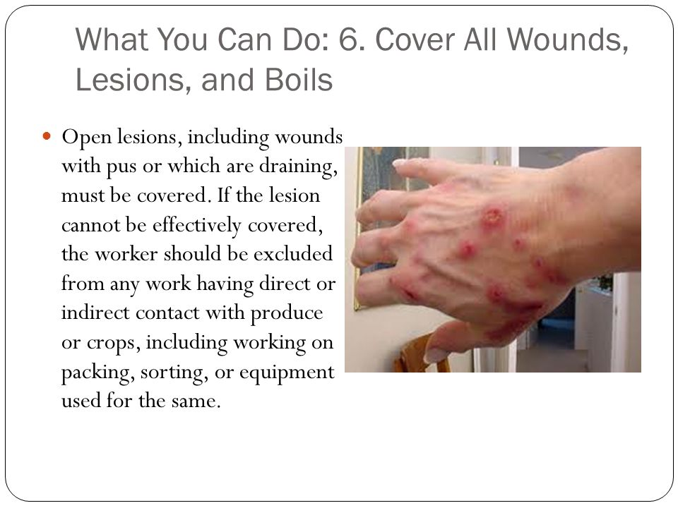 What You Can Do: 6. Cover All Wounds, Lesions, and Boils Open lesions, including wounds with pus or which are draining, must be covered. If the lesion