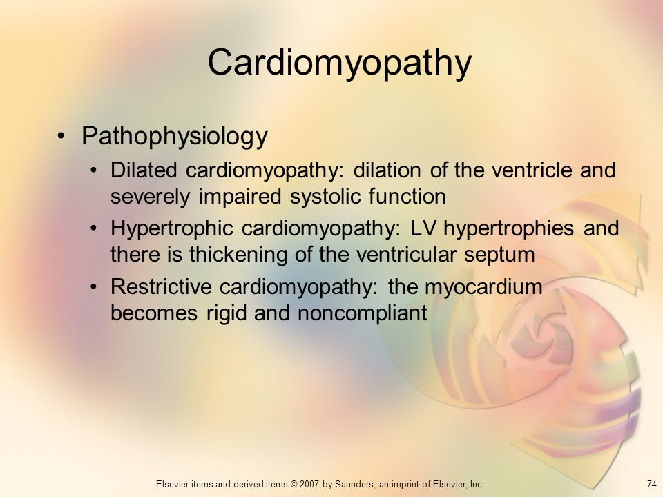 74Elsevier items and derived items © 2007 by Saunders, an imprint of Elsevier, Inc. Cardiomyopathy Pathophysiology Dilated cardiomyopathy: dilation of