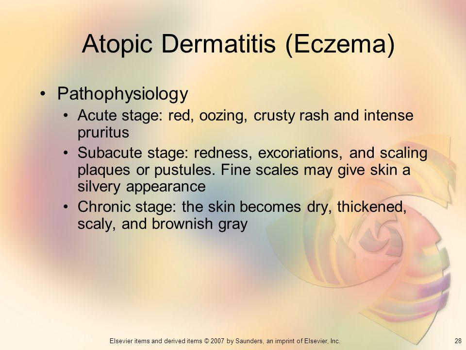 28Elsevier items and derived items © 2007 by Saunders, an imprint of Elsevier, Inc. Atopic Dermatitis (Eczema) Pathophysiology Acute stage: red, oozin