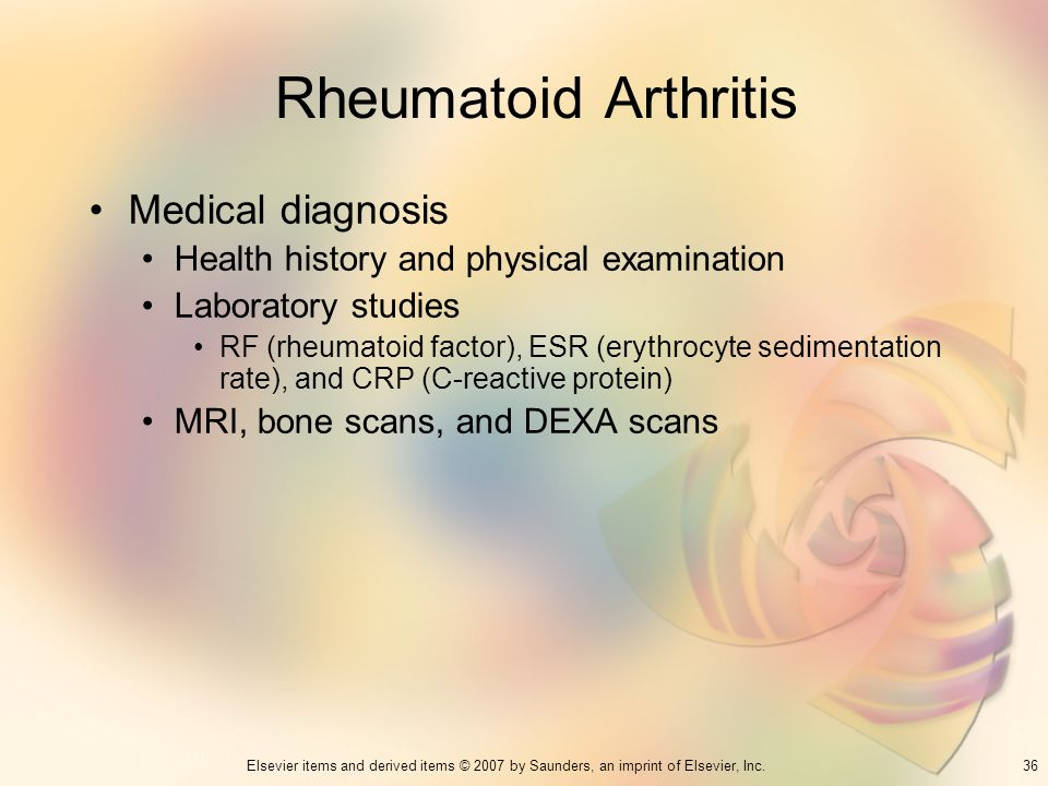 36Elsevier items and derived items © 2007 by Saunders, an imprint of Elsevier, Inc. Rheumatoid Arthritis Medical diagnosis Health history and physical