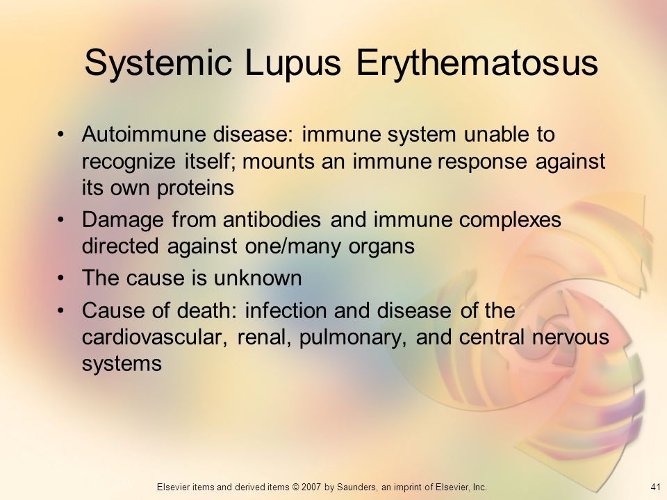 41Elsevier items and derived items © 2007 by Saunders, an imprint of Elsevier, Inc. Systemic Lupus Erythematosus Autoimmune disease: immune system una