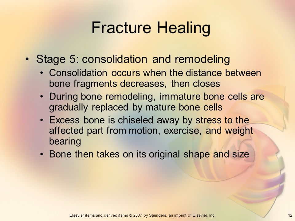 12Elsevier items and derived items © 2007 by Saunders, an imprint of Elsevier, Inc. Fracture Healing Stage 5: consolidation and remodeling Consolidati
