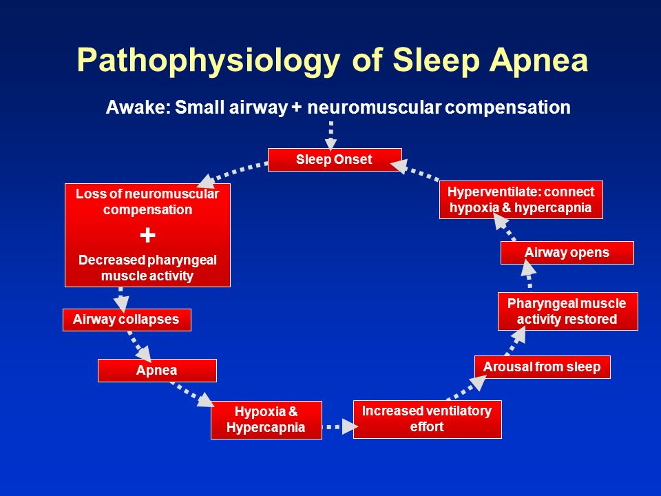 Pathophysiology of Sleep Apnea Awake: Small airway + neuromuscular compensation Loss of neuromuscular compensation + Decreased pharyngeal muscle activ