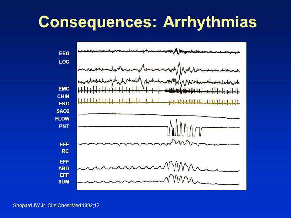 Consequences: Arrhythmias Shepard JW Jr. Clin Chest Med 1992;12. EEG LOC EMG CHIN EKG SAO2 FLOW PNT EFF ABD EFF SUM EFF RC