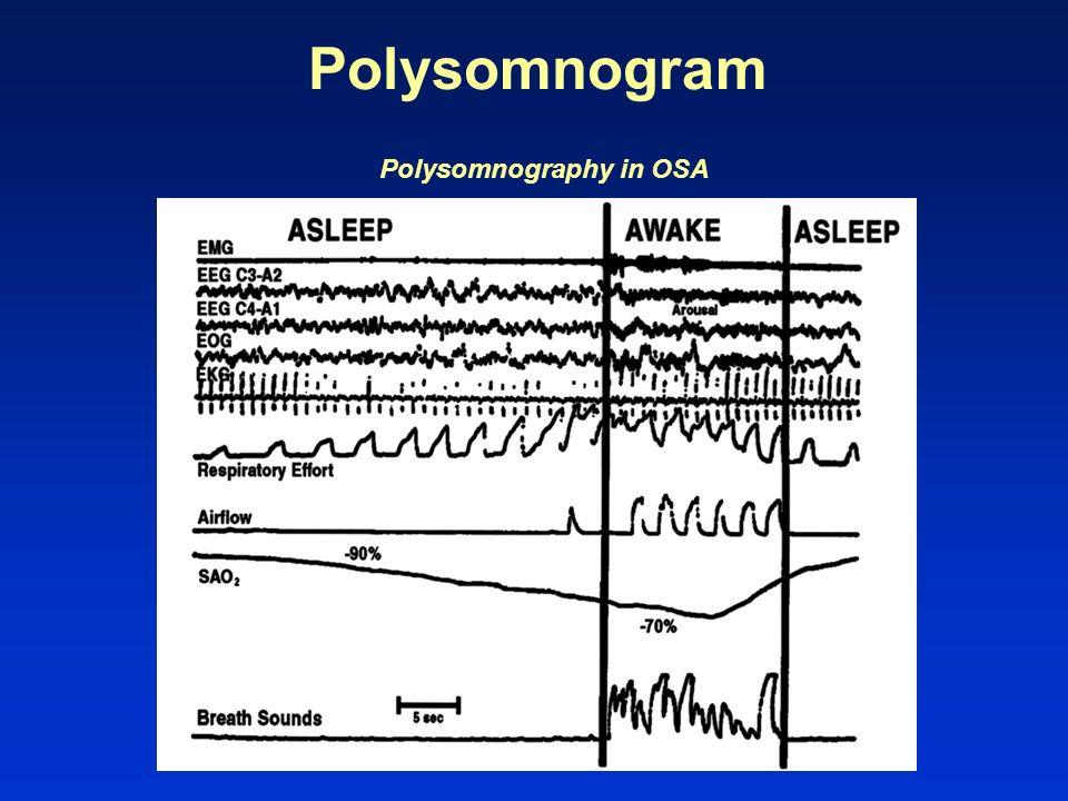 Polysomnogram Polysomnography in OSA