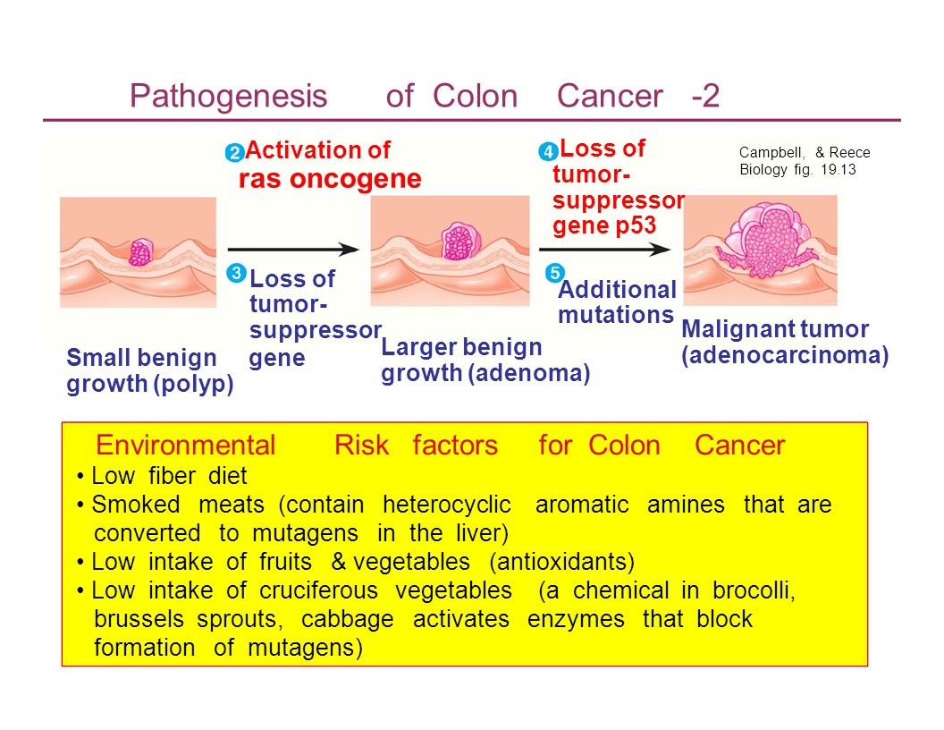 Pathogenesis of Colon Cancer -2 Activation of ras oncogene Loss of tumor- suppressor gene p53 Campbell, & Reece Biology fig. 19.13 Loss of Additional