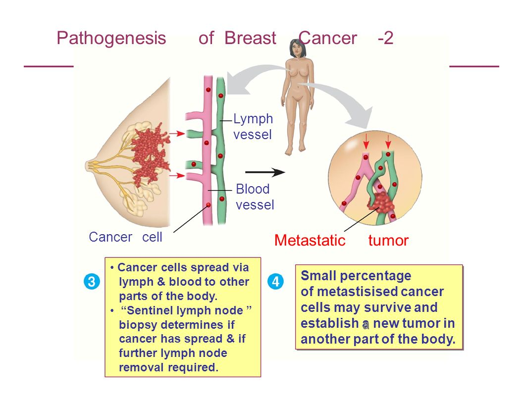 Pathogenesis of Breast Cancer -2 Lymph vessel Blood vessel Cancer cell Cancer cells spread via lymph & blood to other parts of the body. Sentinel lymp