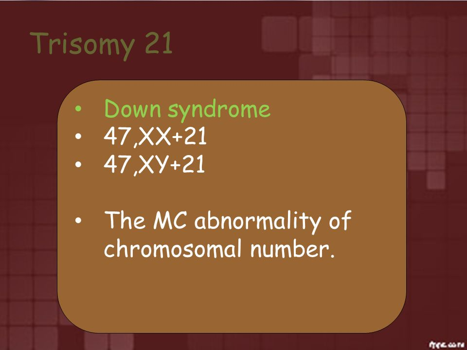 Trisomy 21 Down syndrome 47,XX+21 47,XY+21 The MC abnormality of chromosomal number.