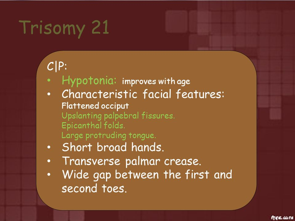 Trisomy 21 C|P: Hypotonia: improves with age Characteristic facial features: Flattened occiput Upslanting palpebral fissures. Epicanthal folds. Large