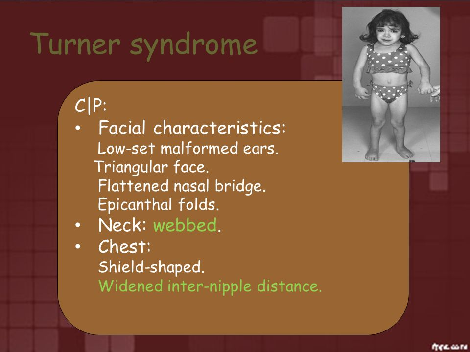 Turner syndrome C|P: Facial characteristics: Low-set malformed ears. Triangular face. Flattened nasal bridge. Epicanthal folds. Neck: webbed. Chest: S