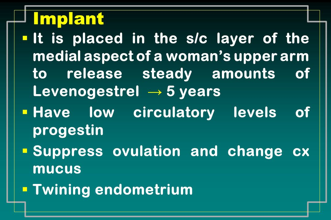 It is placed in the s/c layer of the medial aspect of a womans upper arm to release steady amounts of Levenogestrel 5 years Have low circulatory level