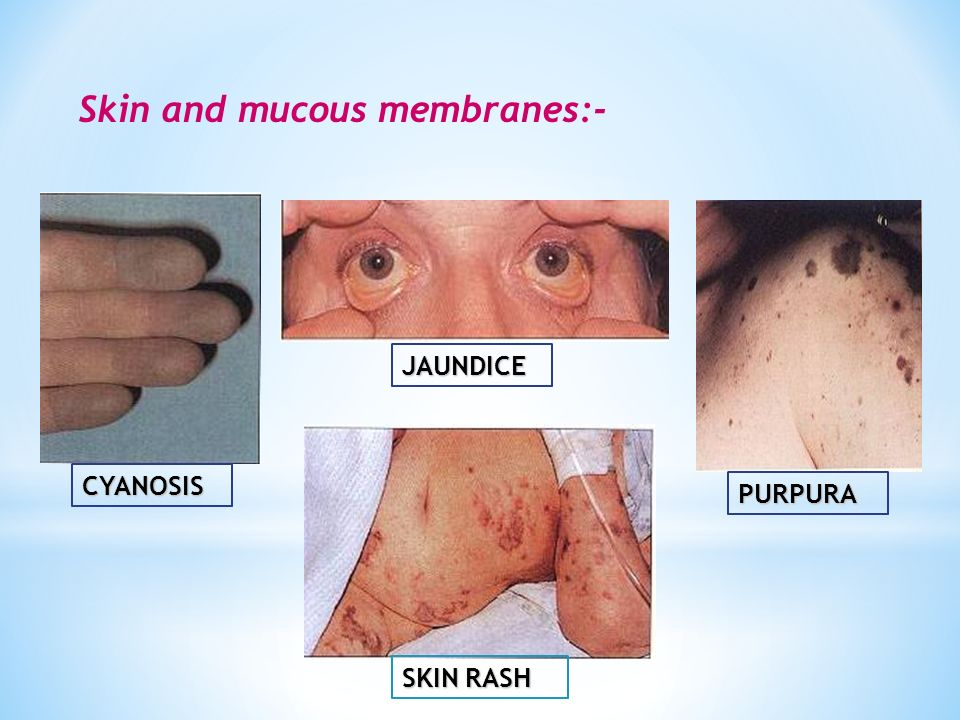 CYANOSIS JAUNDICE PURPURA SKIN RASH Skin and mucous membranes:-