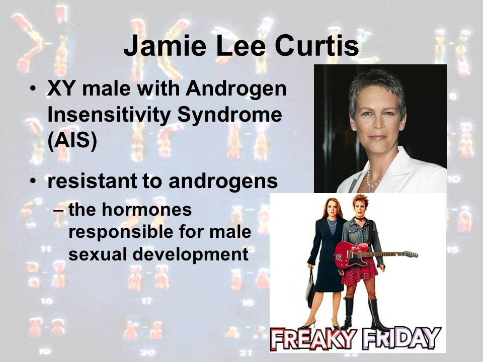 Jamie Lee Curtis XY male with Androgen Insensitivity Syndrome (AIS) resistant to androgens –the hormones responsible for male sexual development