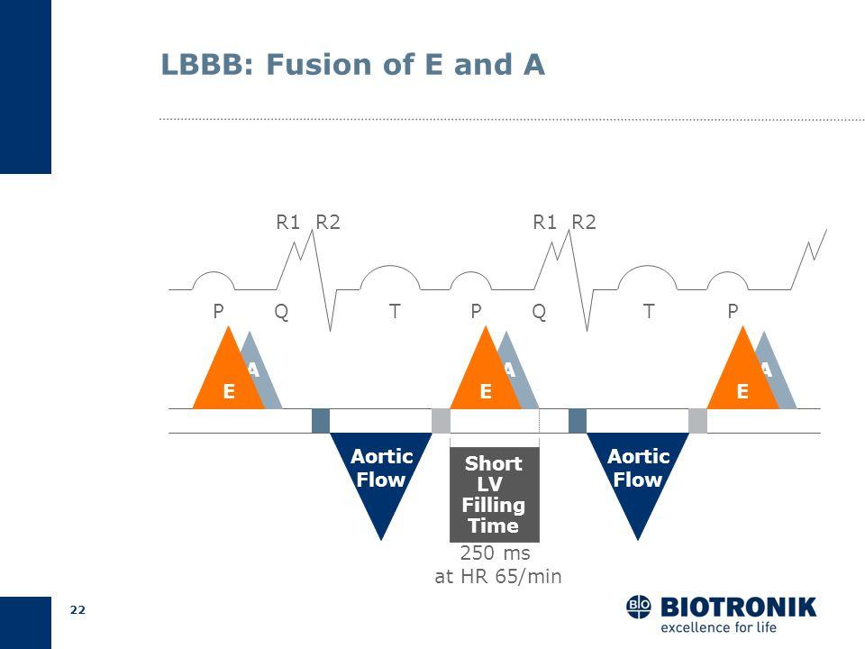 21 LBBB: Late Start of LV Filling *MVO= Mitral Valve Opening **IVR= Isovolumic Relaxation PQT P A R1 R2 QT IVC IVR* Aortic Flow A MVC MVO* AVOAVC P Ao