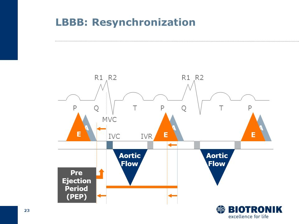 22 LBBB: Fusion of E and A PQT P AA R1 R2 QT A P EE Short LV Filling Time E Aortic Flow Aortic Flow 250 ms at HR 65/min