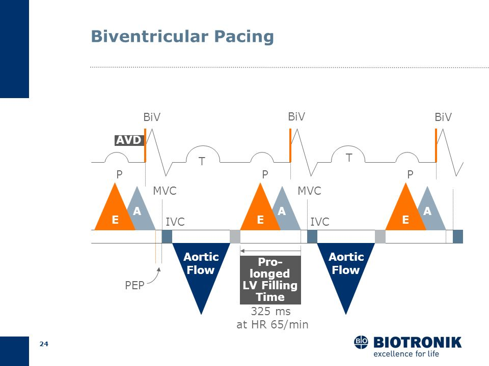 23 PQT P AA R1 R2 QT IVC IVR A MVC P EE E Aortic Flow Aortic Flow Pre Ejection Period (PEP) LBBB: Resynchronization