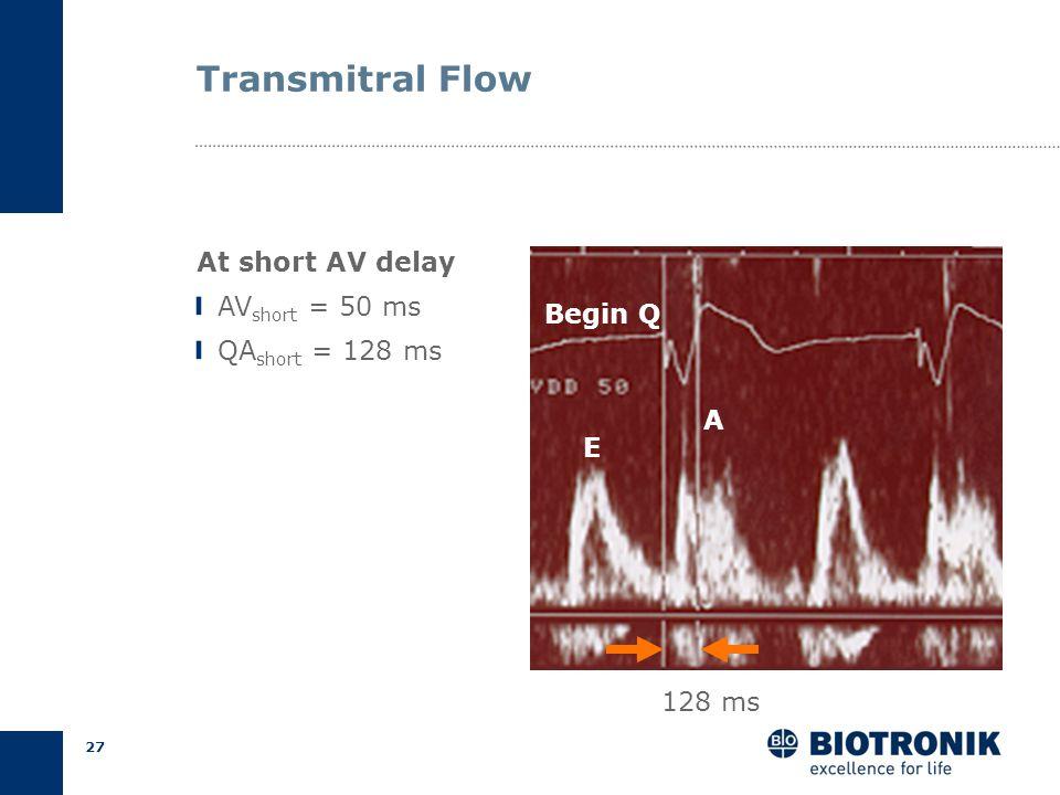 26 AV Delay Optimization Programmed AV Delays AV short = short AV (25% of PR) AV long = long AV (75% of PR) Ritter Formula Ritter et al., PACE 1995 AV