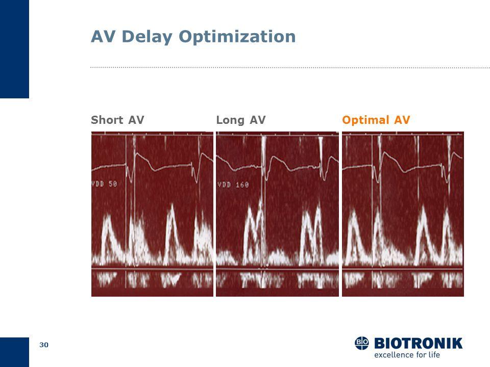 29 AV Delay Optimization Result Programmed AV Delays AV short = 50 ms AV long = 160 ms Measured QA Intervals QA short = 128 ms QA long = 48 ms AV opt