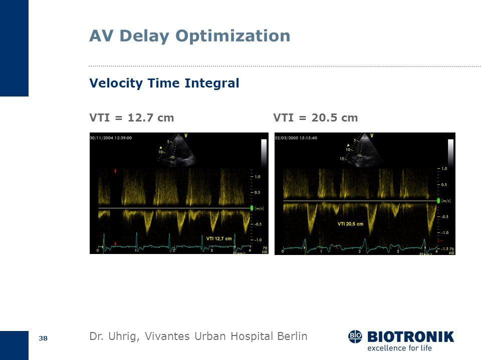 37 Velocity Time Integral ECG Velocity (m/s) Time v max Ejection time v mean V max = 1.58 m/s V mean = 1.09 m/s ET= 288 ms VTI= V mean * ET VTI= 0.31