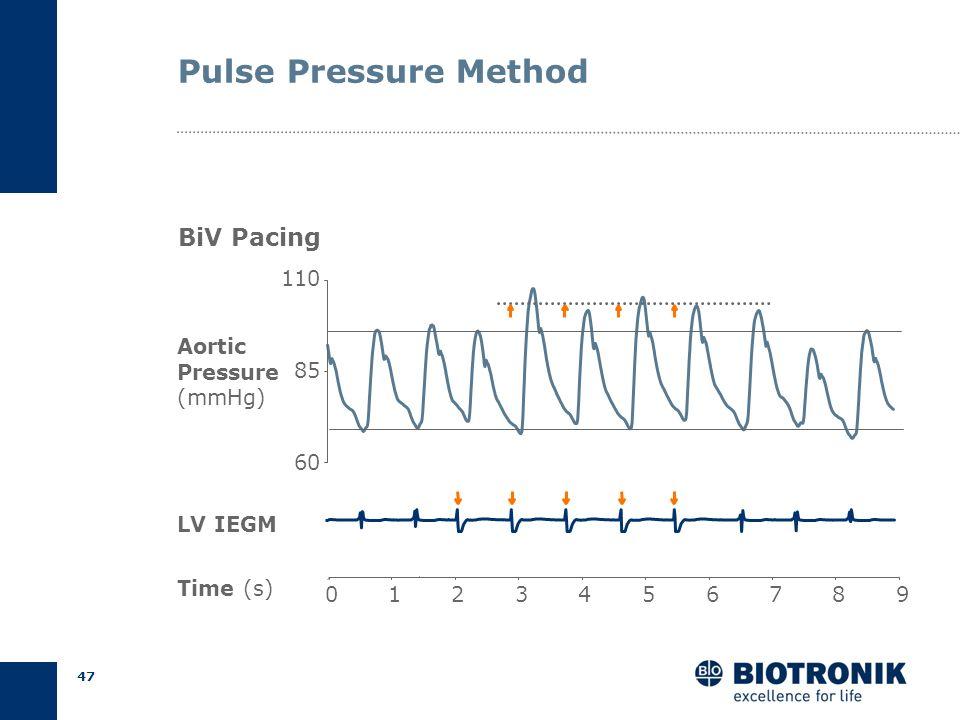 46 Pulse Pressure Method IntrinsicPaced Auricchio et al., PACE 1998 P R Aorta LV PEP Time Pressure
