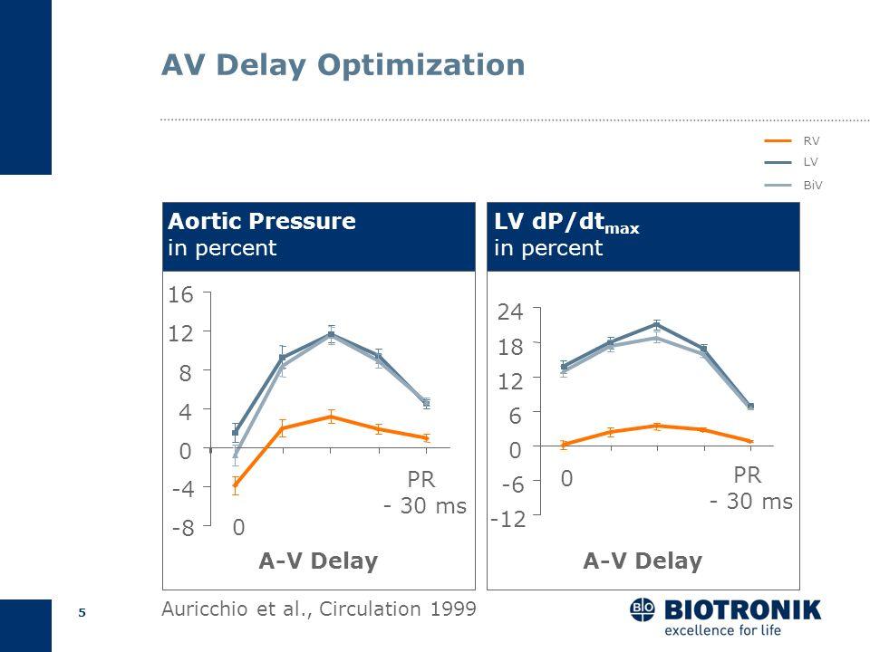 4 AV Delay Optimization Empirical Calculation Echocardiography Pulse pressure Methods