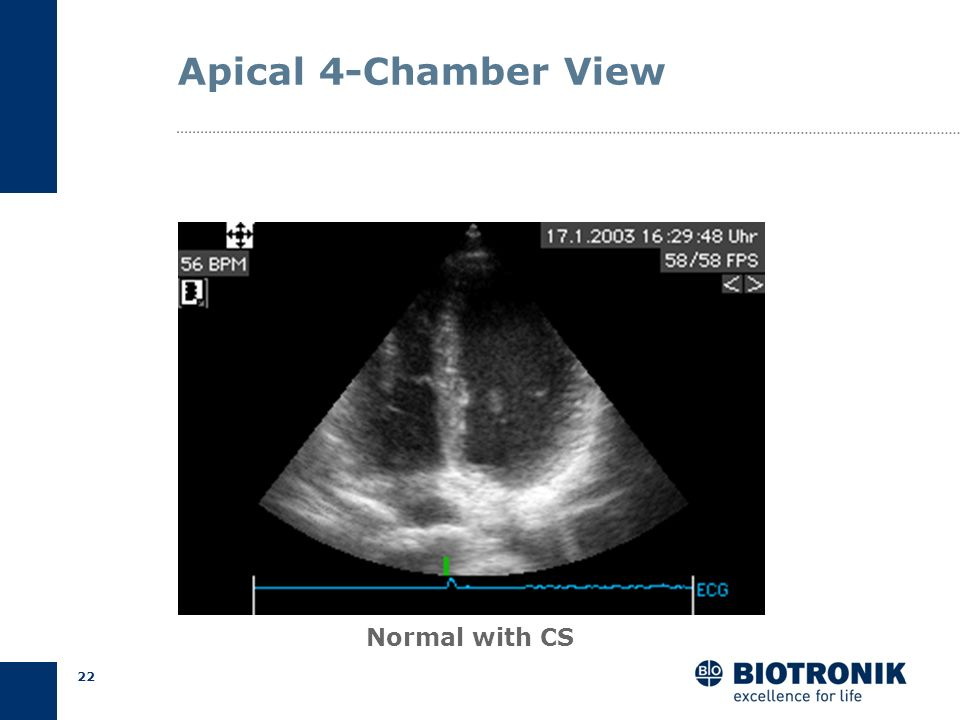 21 Apical 4-Chamber View Normal