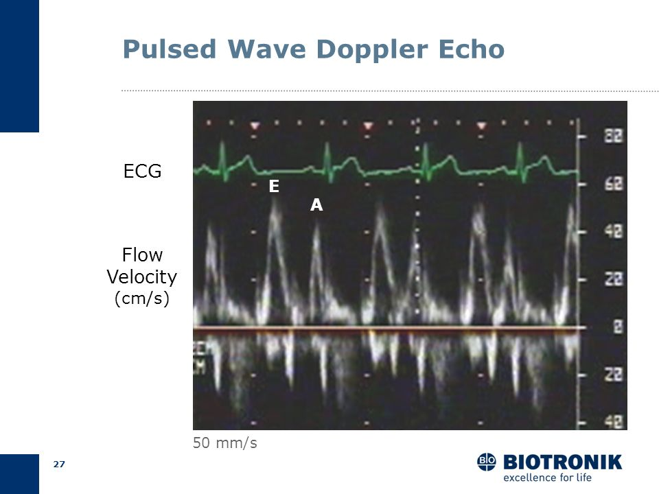 26 Pulsed Wave Doppler Echo 4 Chamber ViewE/A Ratio Mitral Valve
