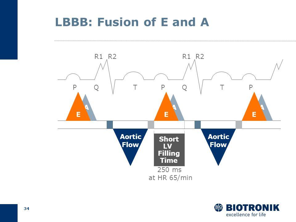 33 LBBB: Late Start of LV Filling *MVO= Mitral Valve Opening **IVR= Isovolumic Relaxation PQT P A R1 R2 QT IVC IVR* Aortic Flow A MVC MVO* AVOAVC P Ao
