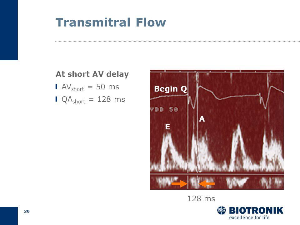 38 AV Delay Optimization Programmed AV Delays AV short = short AV (25% of PR) AV long = long AV (75% of PR) Ritter Formula Ritter et al., PACE 1995 AV