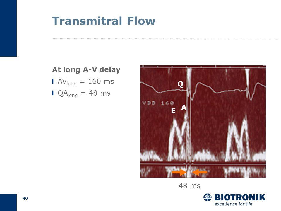 39 Transmitral Flow At short AV delay AV short = 50 ms QA short = 128 ms 128 ms Begin Q E A