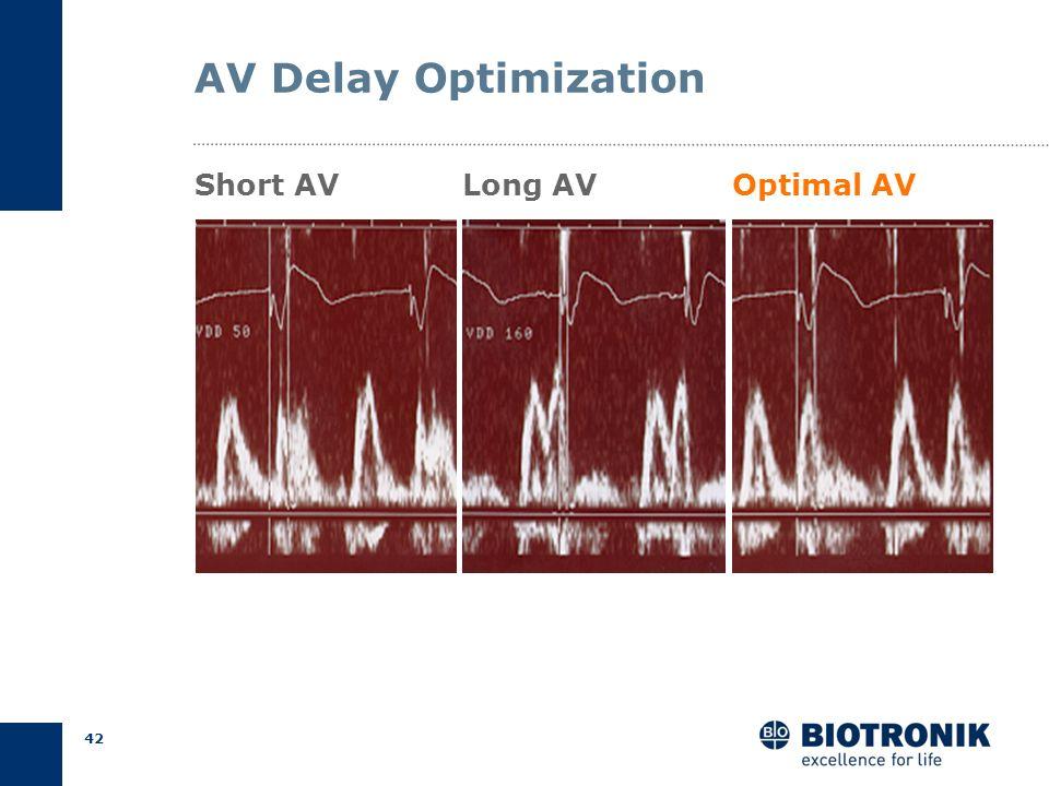 41 AV Delay Optimization Result Programmed AV Delays AV short = 50 ms AV long = 160 ms Measured QA Intervals QA short = 128 ms QA long = 48 ms AV opt