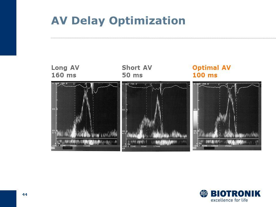 43 AV Delay Optimization Saxon et al., NASPE 2004