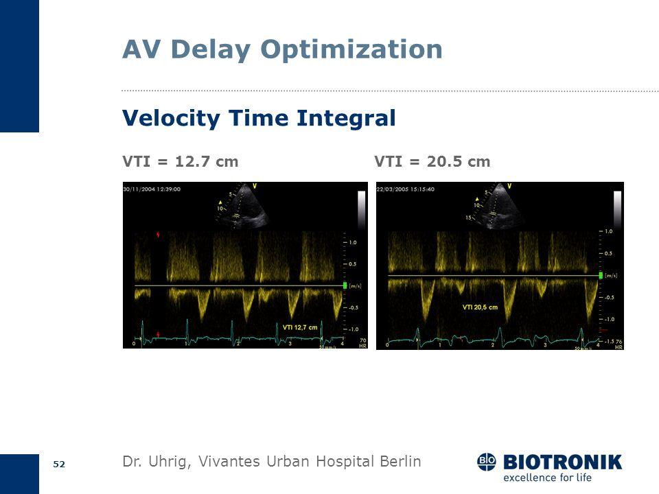 51 Velocity Time Integral ECG Velocity (m/s) Time v max Ejection time v mean V max = 1.58 m/s V mean = 1.09 m/s ET= 288 ms VTI= V mean * ET VTI= 0.31