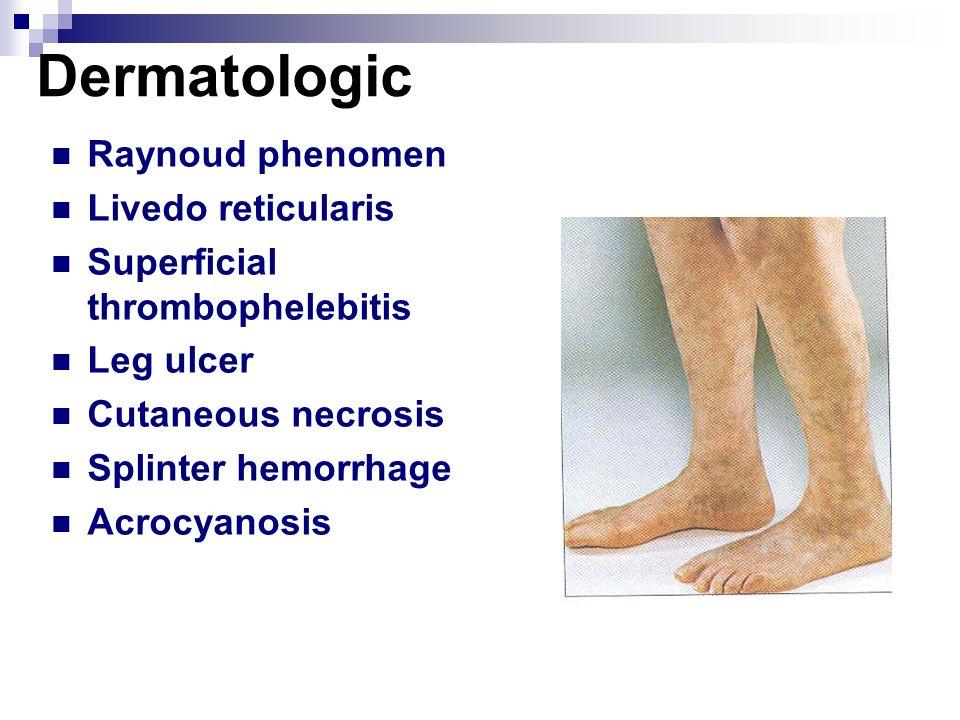 Dermatologic Raynoud phenomen Livedo reticularis Superficial thrombophelebitis Leg ulcer Cutaneous necrosis Splinter hemorrhage Acrocyanosis