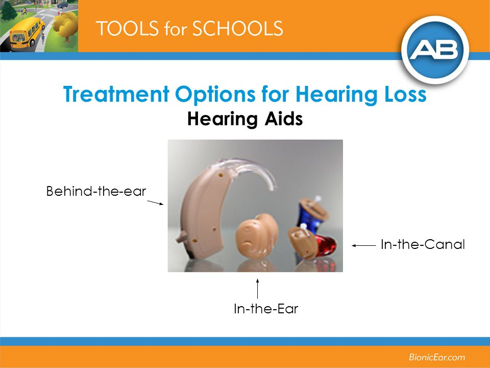 Behind-the-ear In-the-Ear In-the-Canal Treatment Options for Hearing Loss Hearing Aids