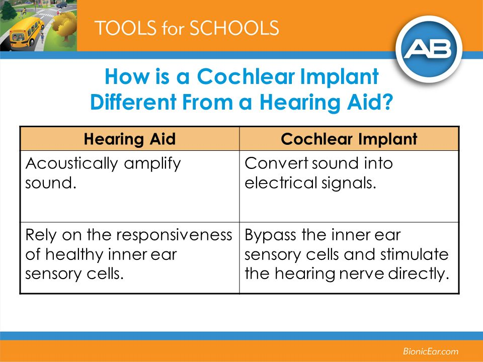 How is a Cochlear Implant Different From a Hearing Aid.