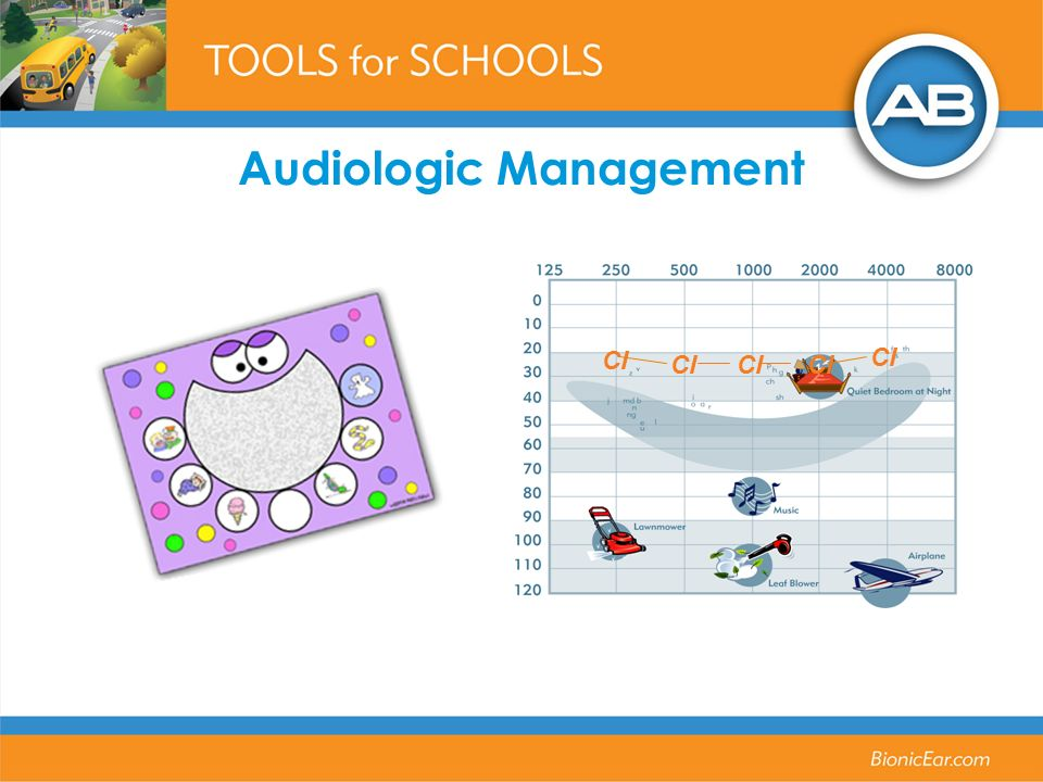 Audiologic Management CI