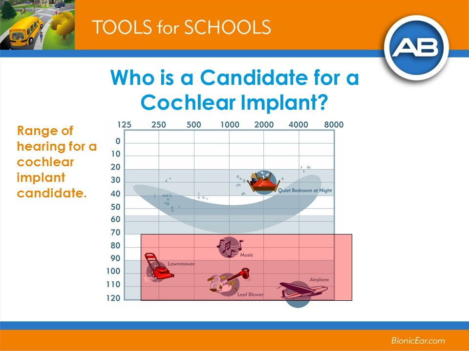 Who is a Candidate for a Cochlear Implant? Range of hearing for a cochlear implant candidate.