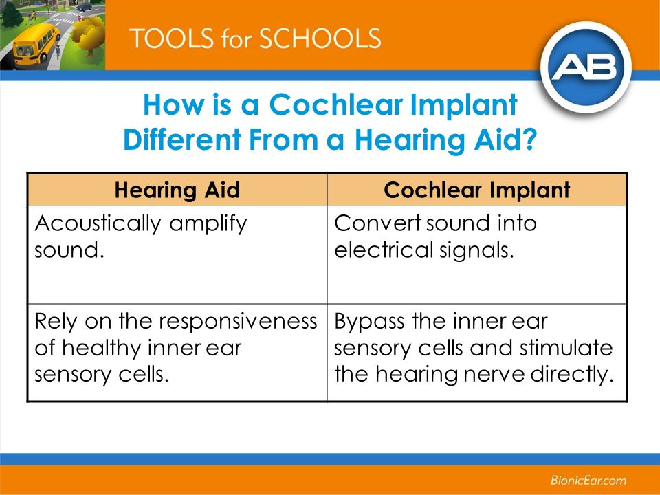 How is a Cochlear Implant Different From a Hearing Aid? Hearing AidCochlear Implant Acoustically amplify sound. Convert sound into electrical signals.